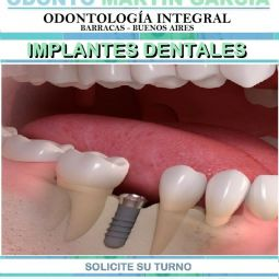 Implantes Dentales Inmediatos Optima Oseointegración Titanio