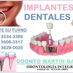 Implantes Dentales - Barracas - Titanio Optima Oseointegración